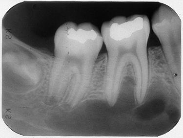 Radicular cyst radiology