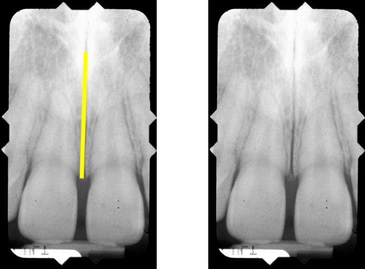 intraoral radiographs | Dr. G's Toothpix | Page 2