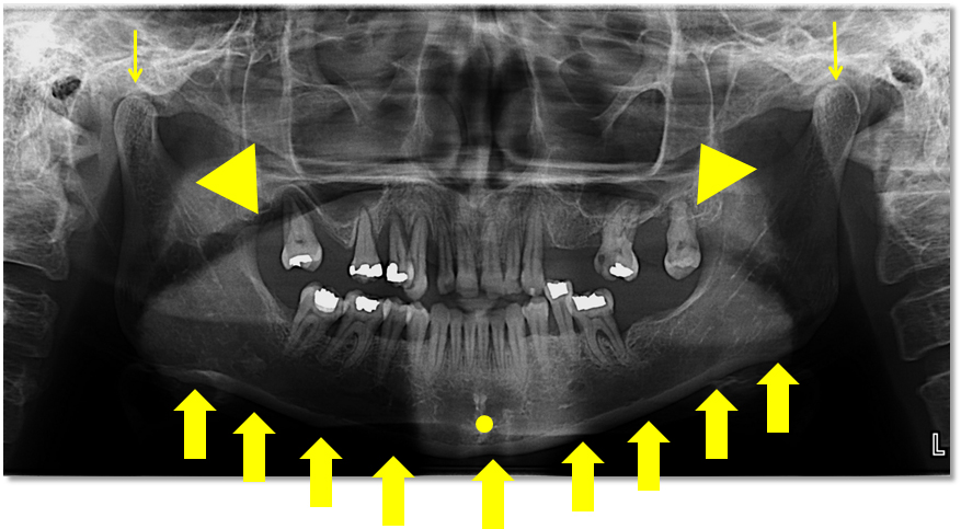 Lingual foramen radiograph